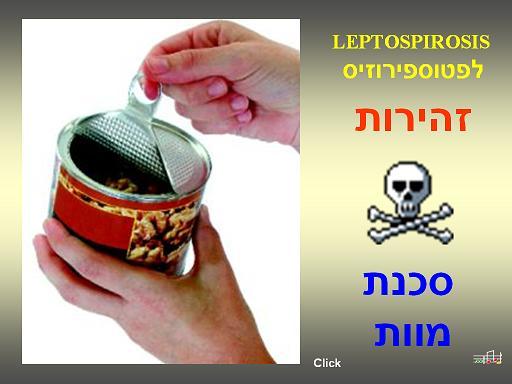 שתיה מפחית זו סכנת מוות, מכיל רעלים וגורם למחלת הלפטוספירוזיס